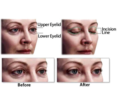 eyelid surgery before and after simulated