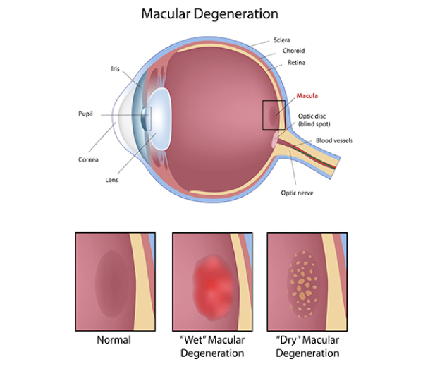 eye with macular degeneration cross section diagram