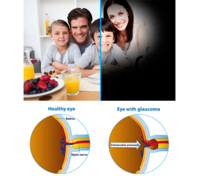 glaucoma simulated vs healthy eye